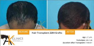 Foto de AK Clinics - Hair Transplant in Bangalore