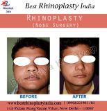 Best Body Lift Surgery India New Delhi