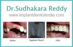 Foto de Dr. Sudhakara Reddy Best Dental Implant Centre Bangalore