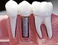 Fotos de Oswal Dental & Oral Surgery Clinic
