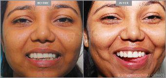 Foto de Synergy Dental Clinic Mumbai